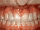 missing-lateral-incisors-after
