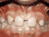 missing-lateral-incisors-before